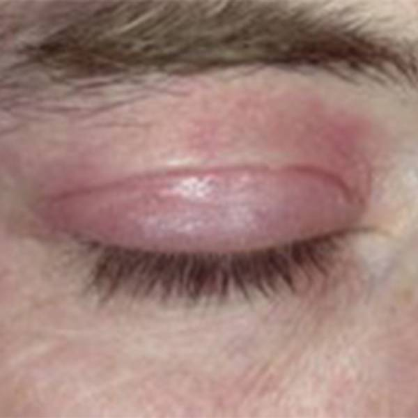 Eyelids before image