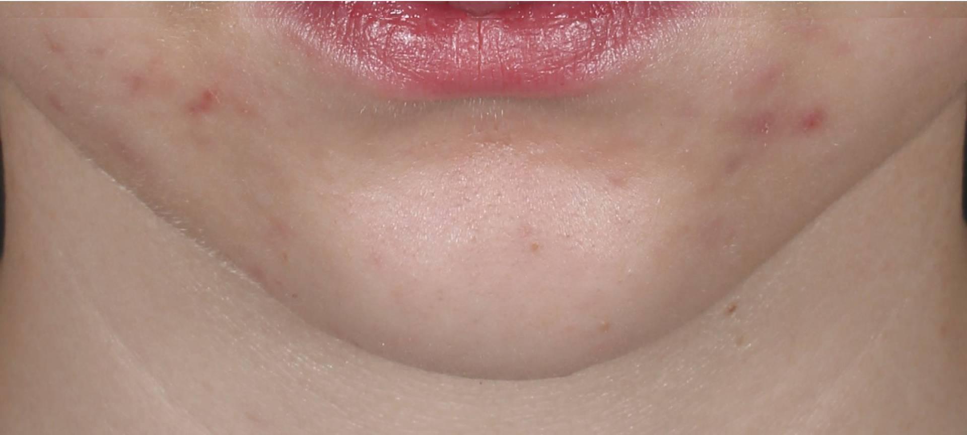 Science Backed Dermatology before image